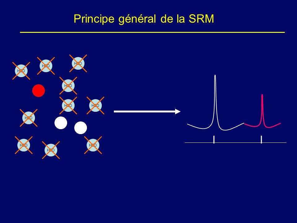 Principe général de la SRM