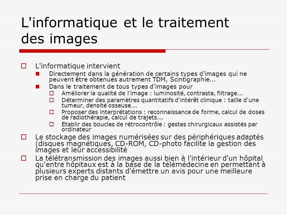 L informatique et le traitement des images