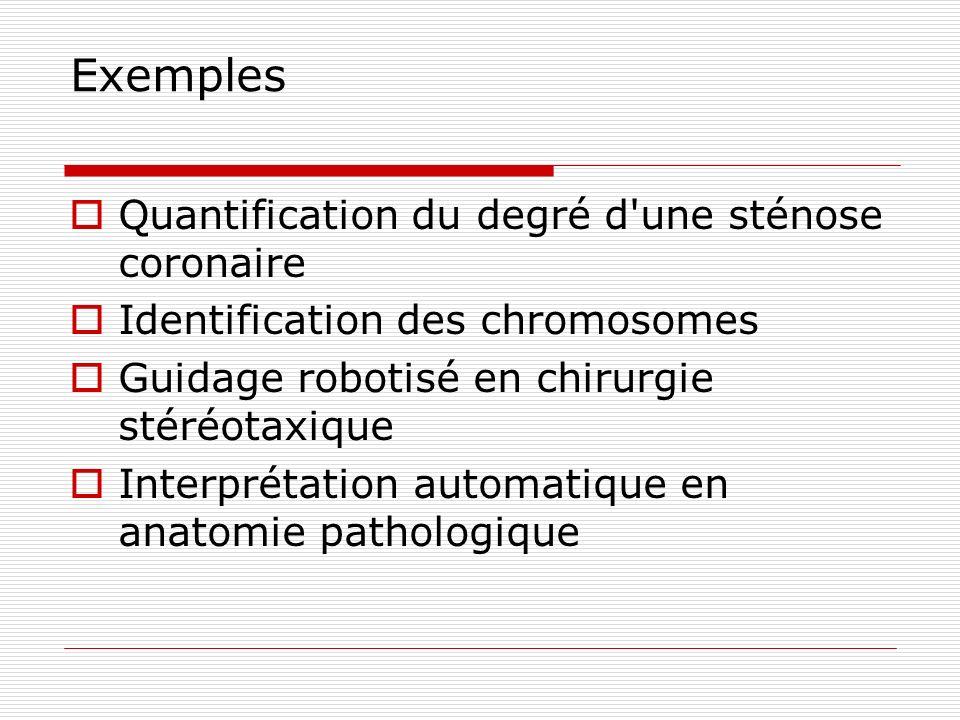 Exemples Quantification du degré d une sténose coronaire