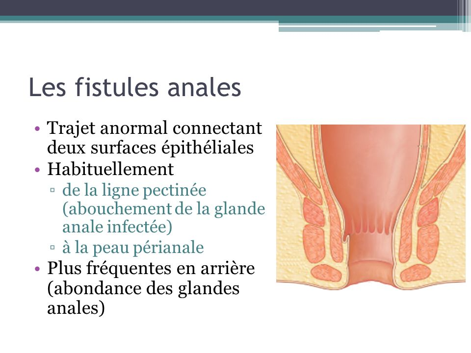 Les fistules anales Trajet anormal connectant deux surfaces épithéliales. Habituellement.