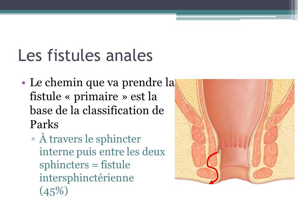 Les fistules anales Le chemin que va prendre la fistule « primaire » est la base de la classification de Parks.