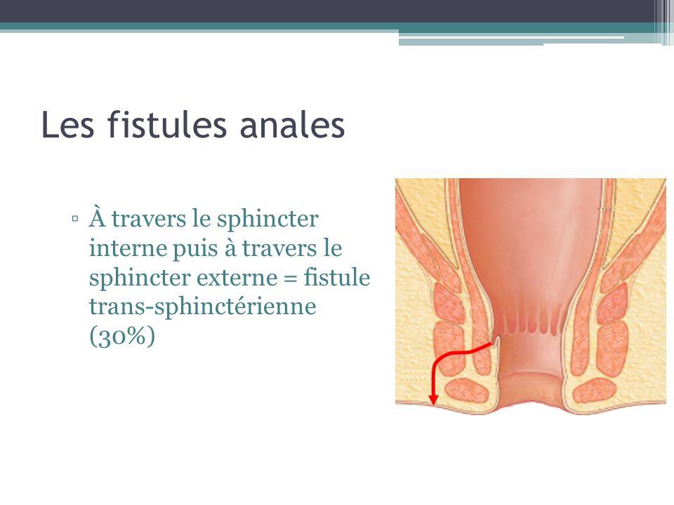 Les fistules anales À travers le sphincter interne puis à travers le sphincter externe = fistule trans-sphinctérienne (30%)