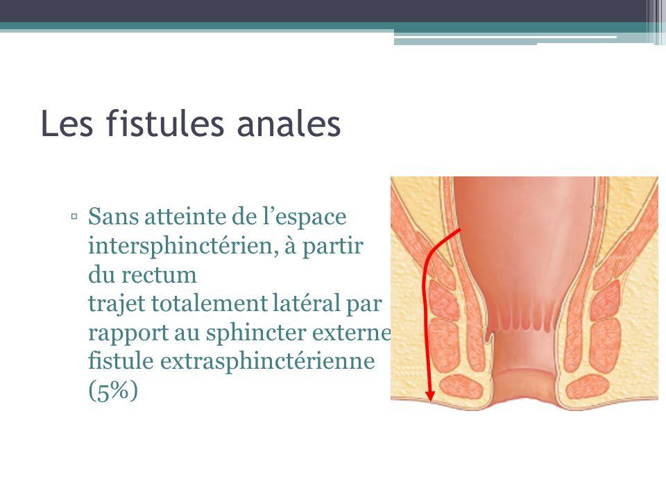 Les fistules anales