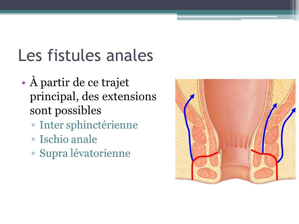 Les fistules anales À partir de ce trajet principal, des extensions sont possibles. Inter sphinctérienne.