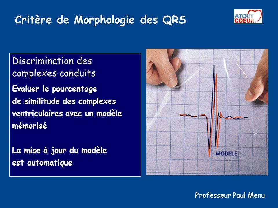Critère de Morphologie des QRS