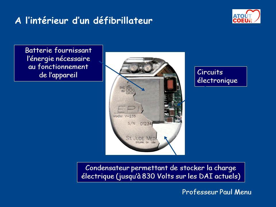 A l'intérieur d'un défibrillateur