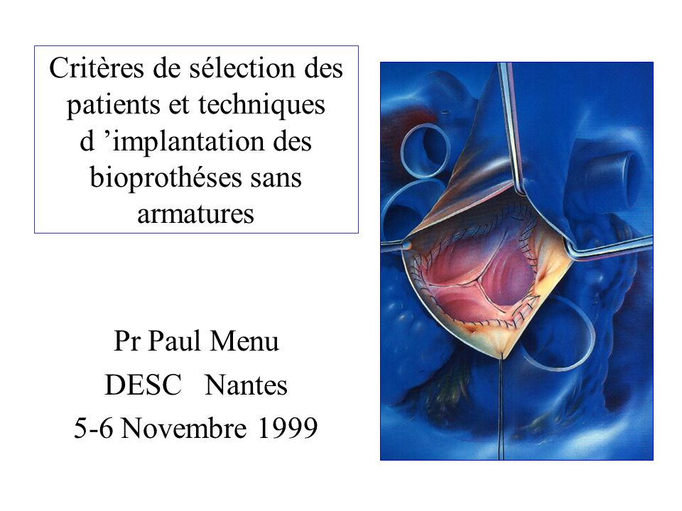 Pr Paul Menu DESC Nantes 5-6 Novembre 1999