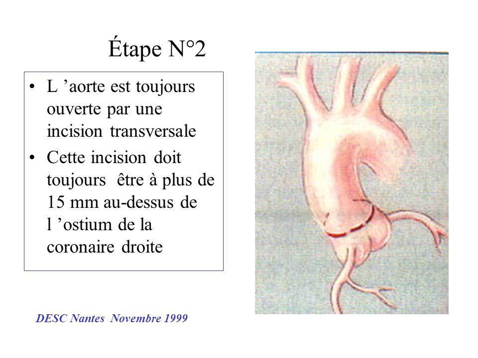 Étape N°2 L 'aorte est toujours ouverte par une incision transversale