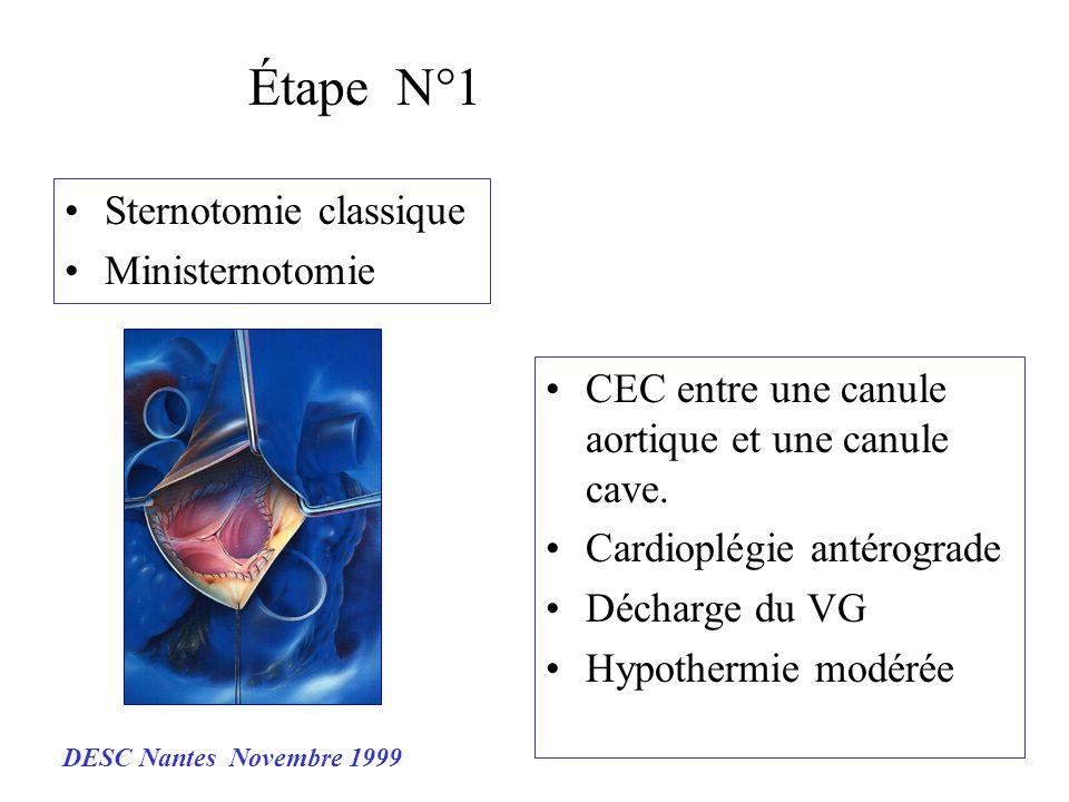 Étape N°1 Sternotomie classique Ministernotomie