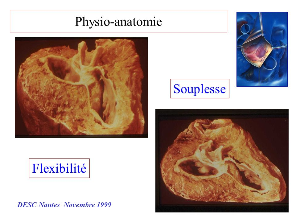 Physio-anatomie Souplesse Flexibilité DESC Nantes Novembre 1999