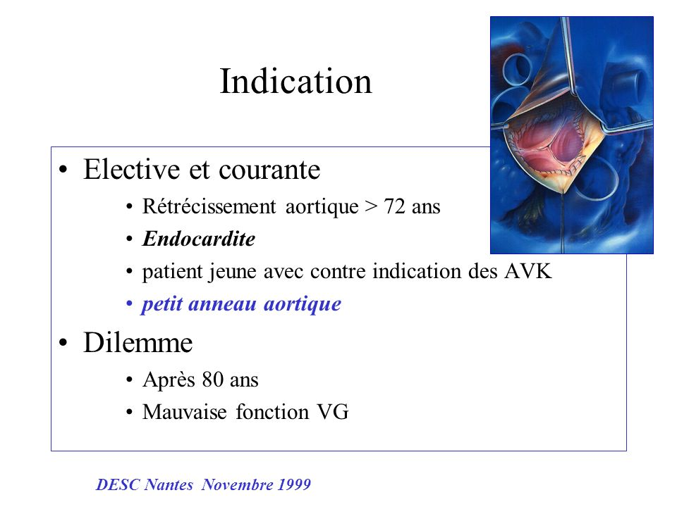 Indication Elective et courante Dilemme