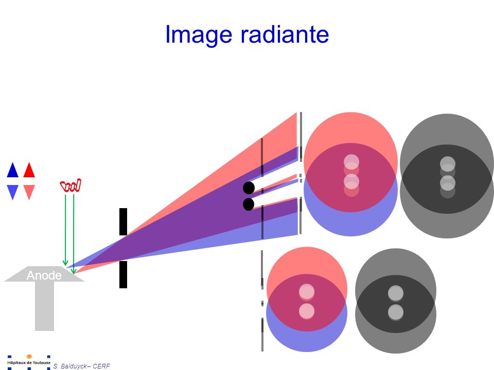 Image radiante Anode