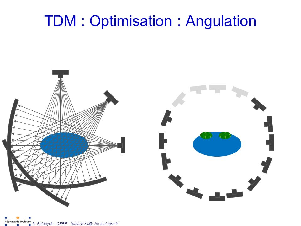 TDM : Optimisation : Angulation