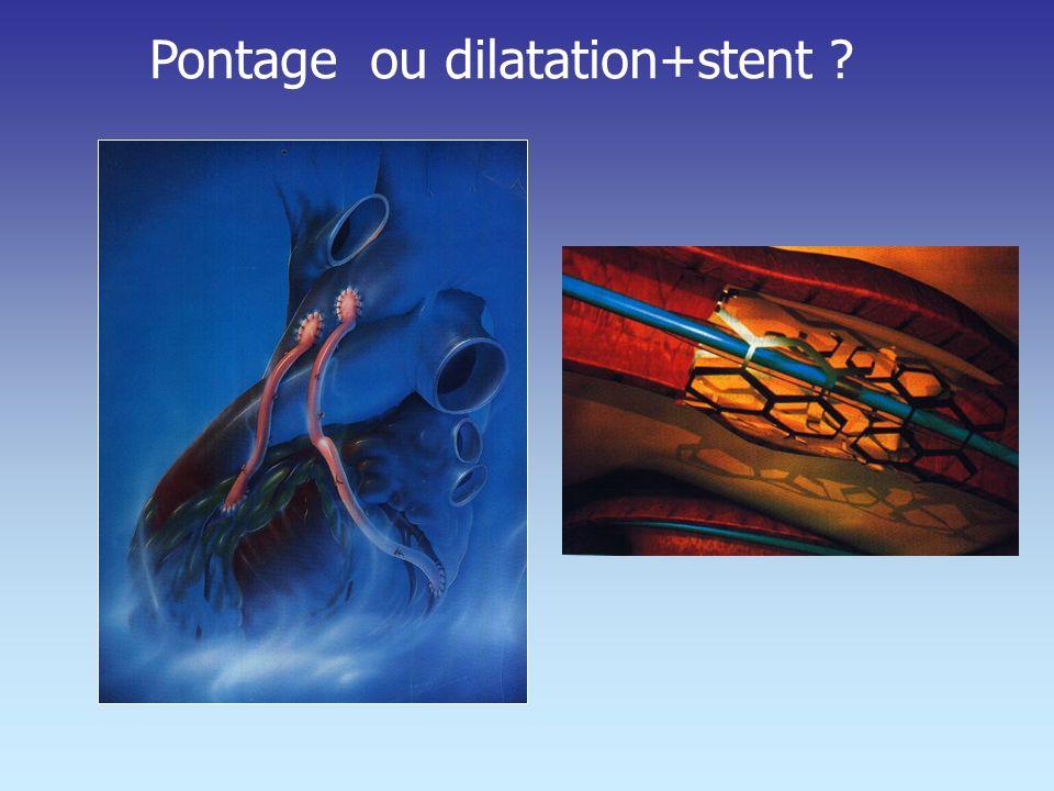 Pontage ou dilatation+stent