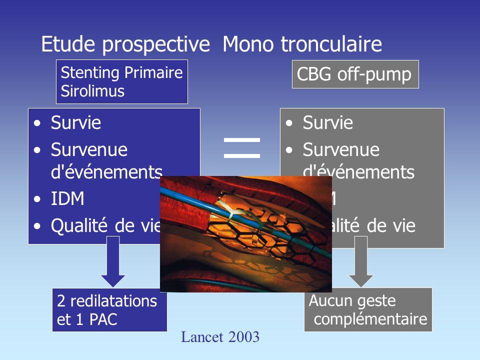 Etude prospective Mono tronculaire