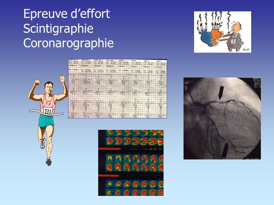 Epreuve d'effort Scintigraphie Coronarographie