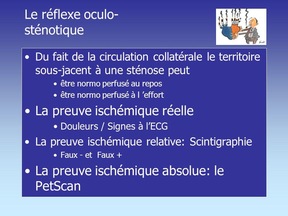 Le réflexe oculo-sténotique