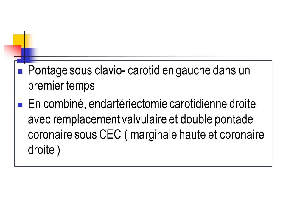 Pontage sous clavio- carotidien gauche dans un premier temps