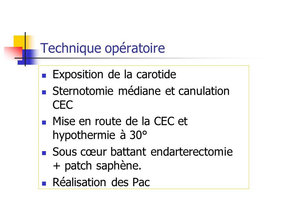 Technique opératoire Exposition de la carotide