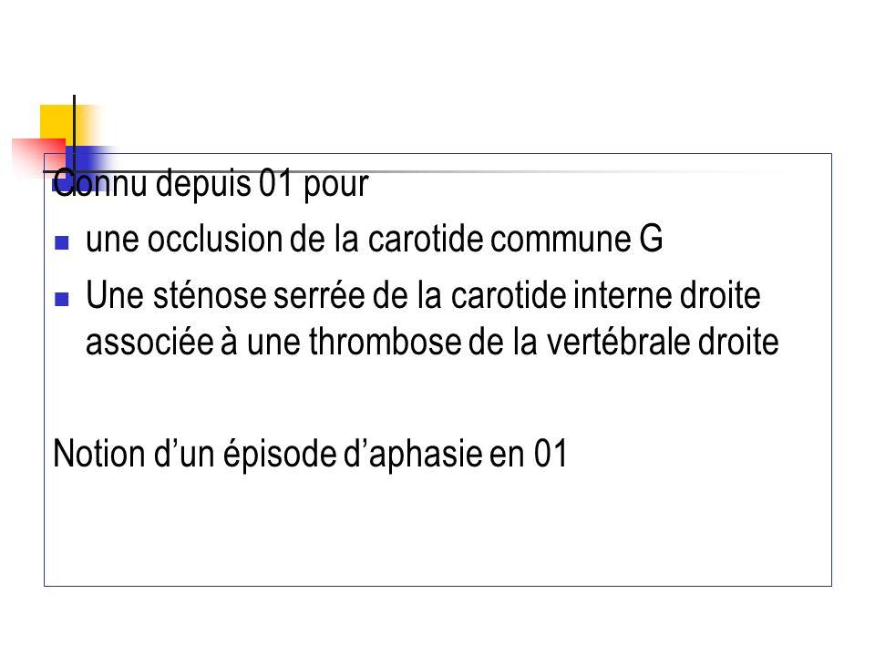 Connu depuis 01 pour une occlusion de la carotide commune G.
