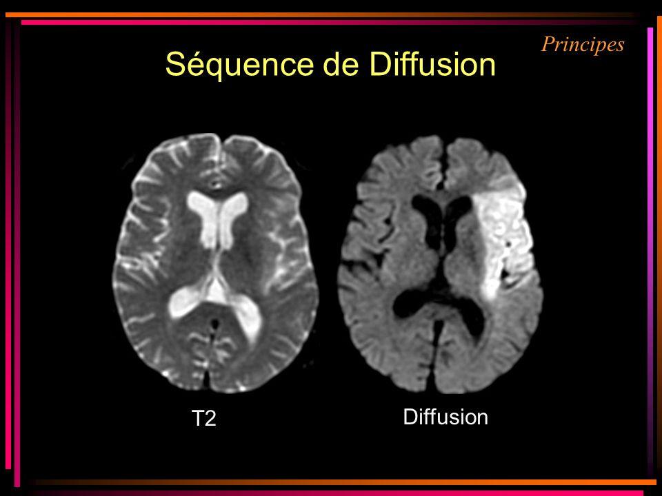 Séquence de Diffusion Principes Prerequis : T2 Diffusion