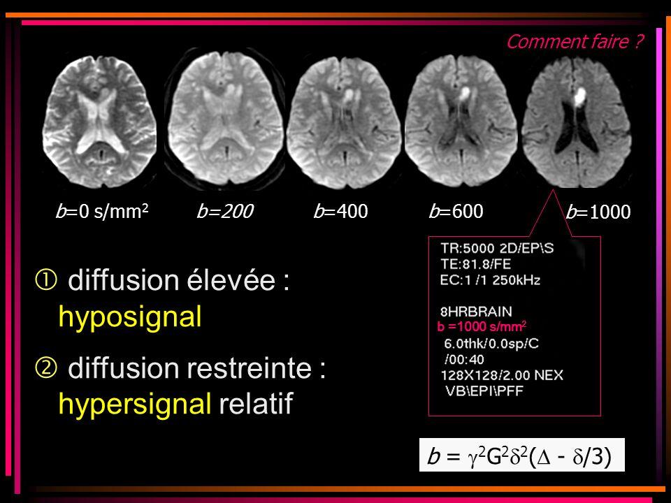  diffusion élevée : hyposignal