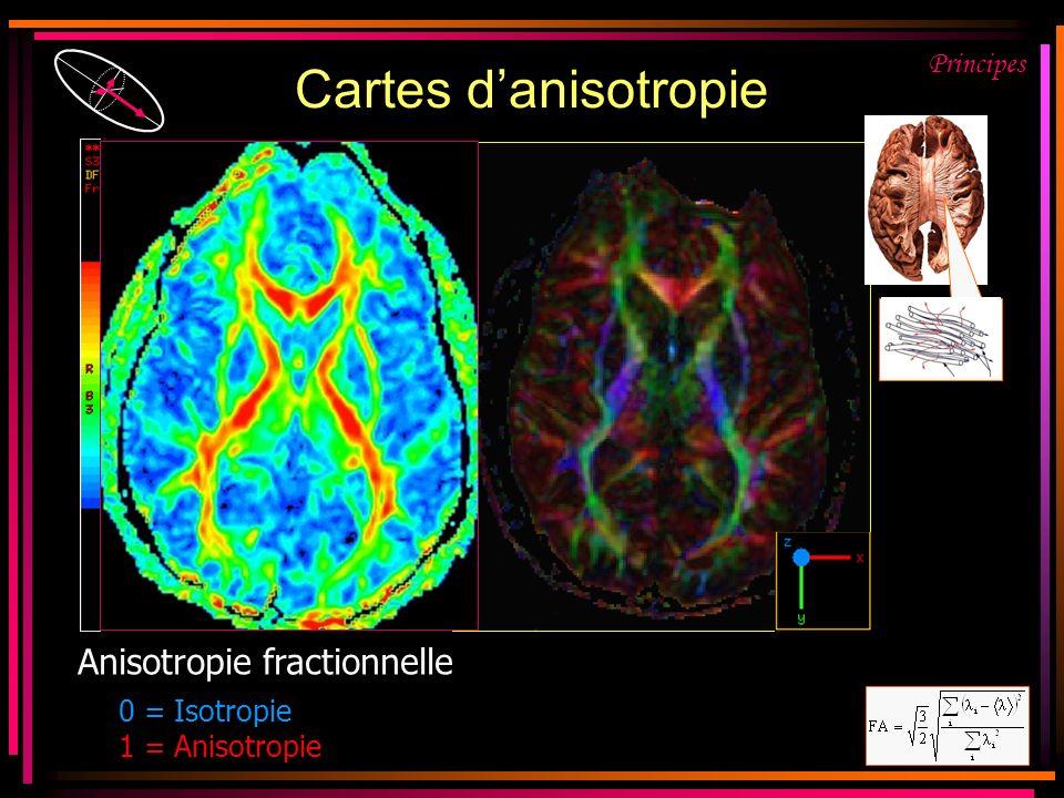 Cartes d'anisotropie FA = Anisotropie fractionnelle Principes