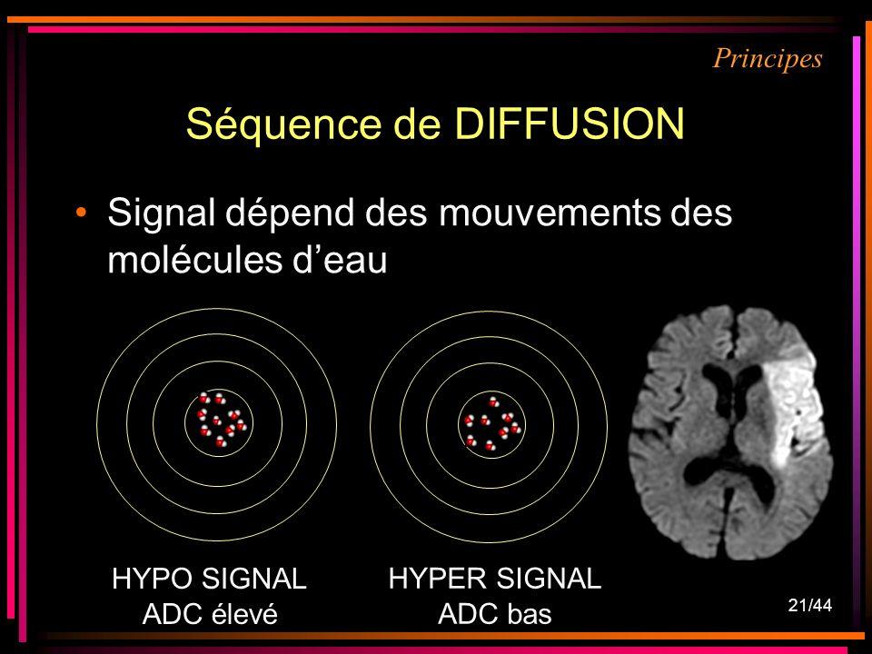Séquence de DIFFUSION Signal dépend des mouvements des molécules d'eau