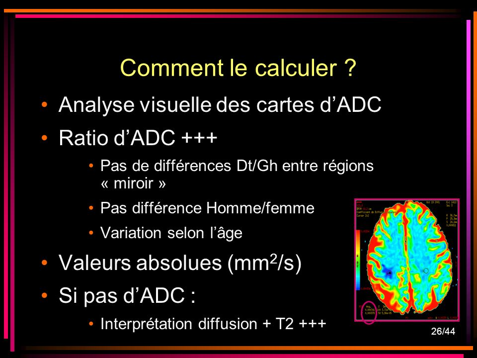 Comment le calculer Analyse visuelle des cartes d'ADC
