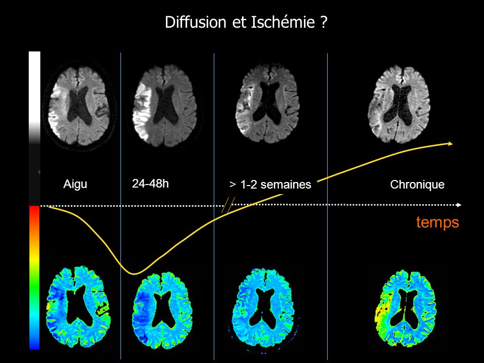 Diffusion et Ischémie Aigu 24-48h > 1-2 semaines Chronique temps