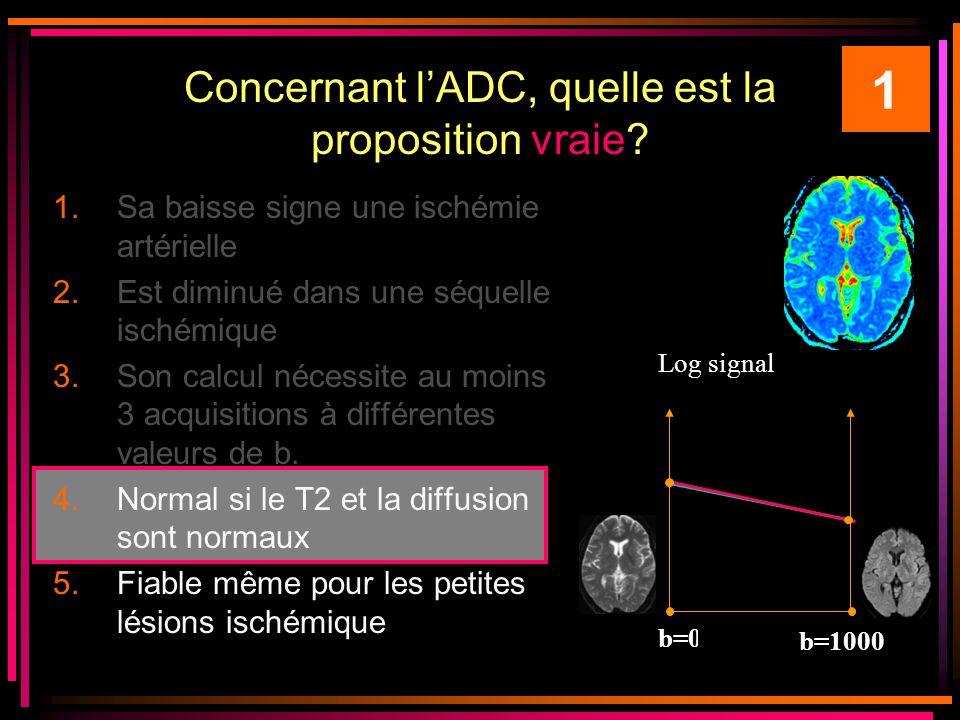 Concernant l'ADC, quelle est la proposition vraie