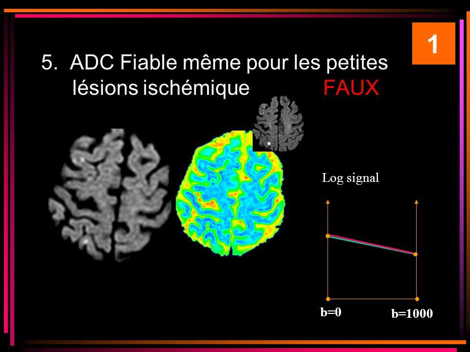 1 5. ADC Fiable même pour les petites lésions ischémique FAUX