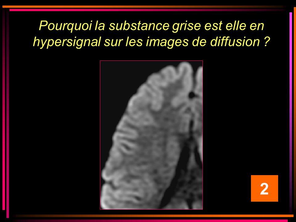 Pourquoi la substance grise est elle en hypersignal sur les images de diffusion