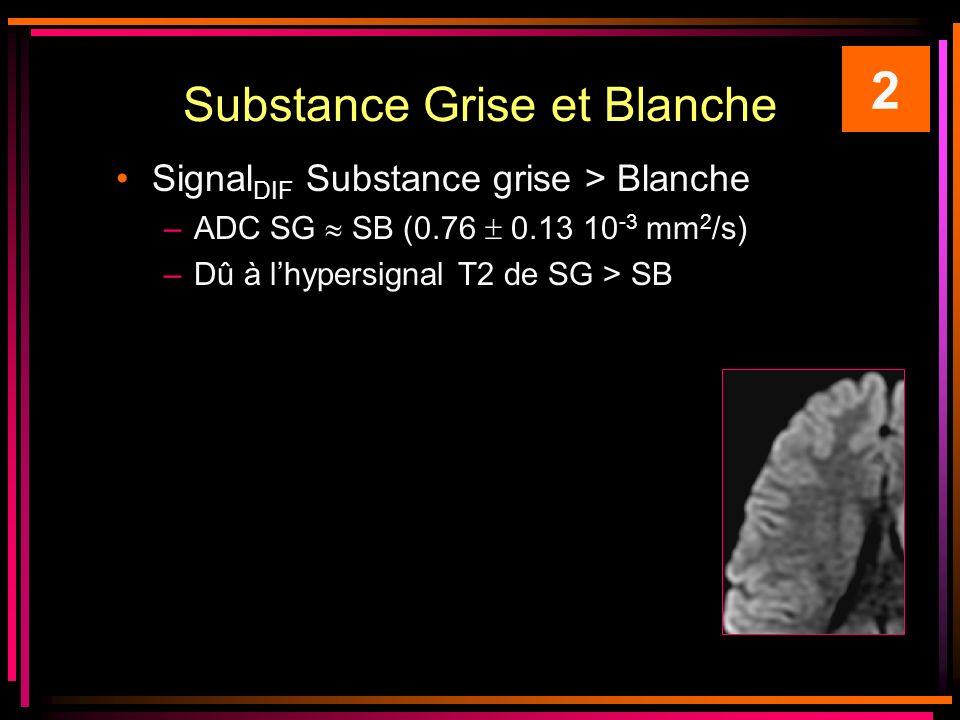 Substance Grise et Blanche