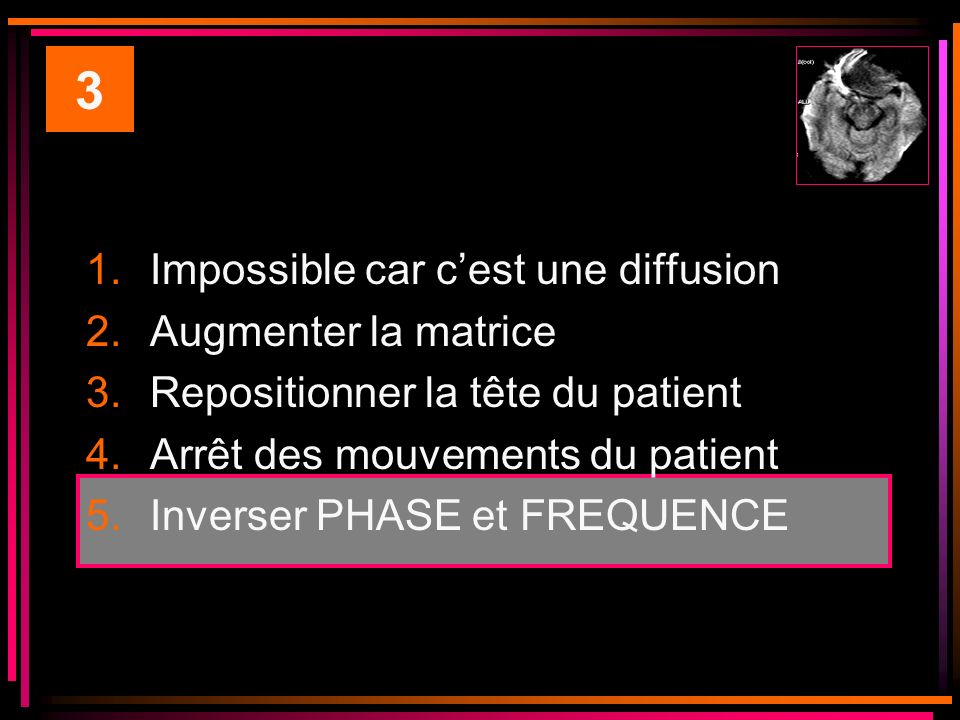 3 Impossible car c'est une diffusion Augmenter la matrice