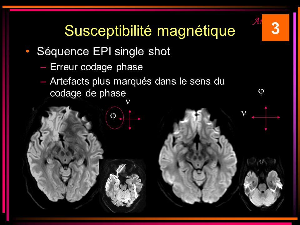 Susceptibilité magnétique