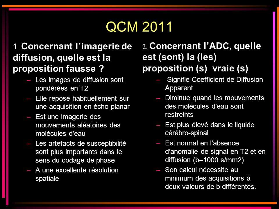 QCM 2011 2. Concernant l'ADC, quelle est (sont) la (les) proposition (s) vraie (s) Signifie Coefficient de Diffusion Apparent.