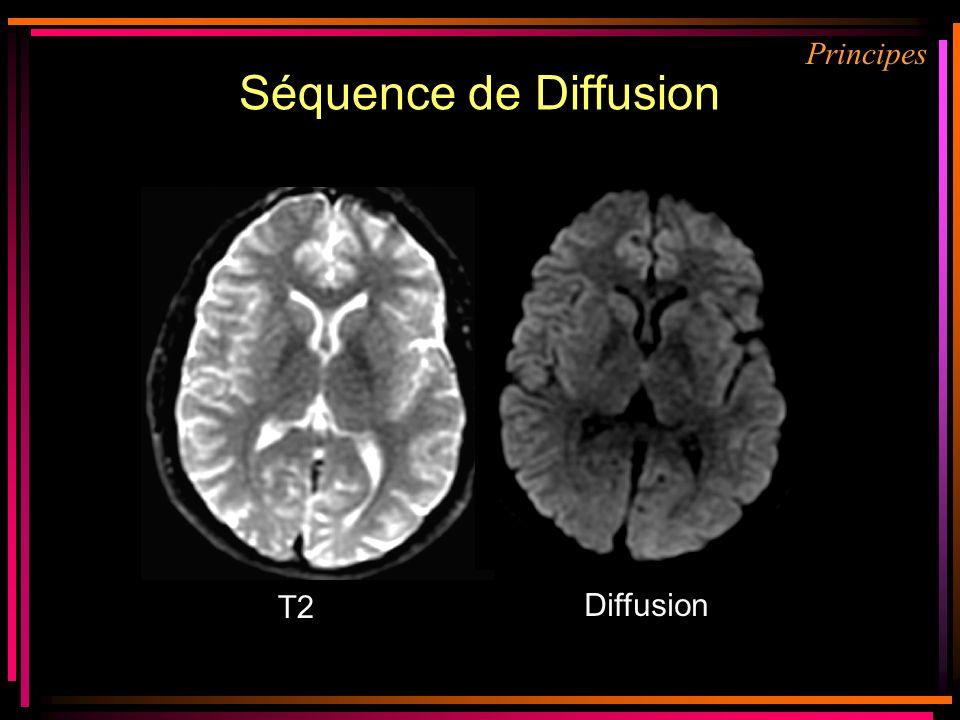 Séquence de Diffusion Principes T2 Prerequis : Diffusion