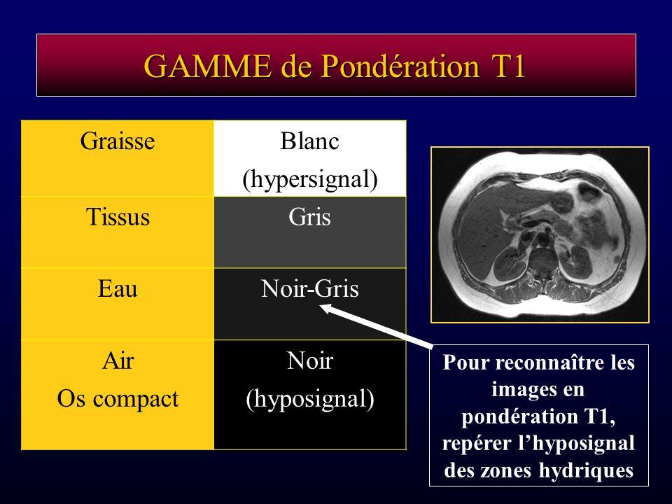 GAMME de Pondération T1 Graisse Blanc (hypersignal) Tissus Gris Eau