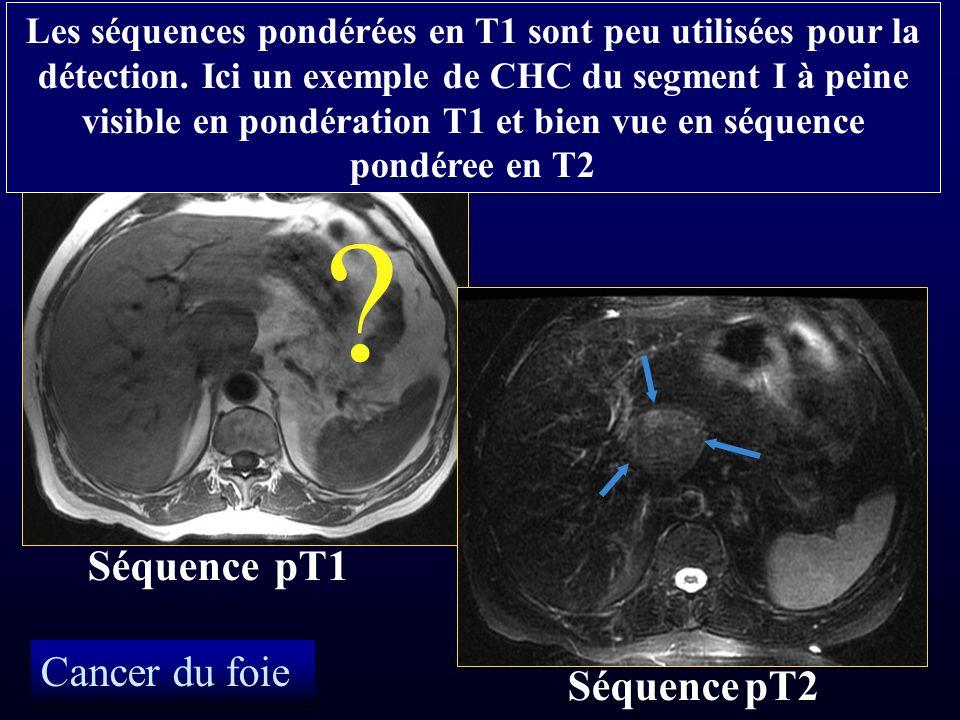 Séquence pT1 Cancer du foie Séquence pT2