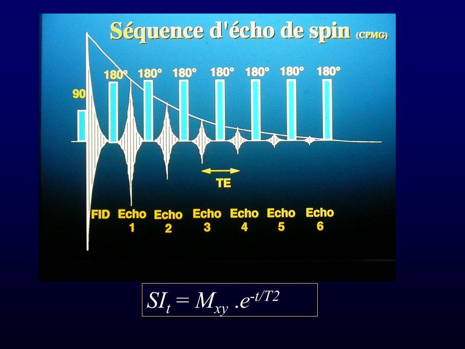 SIt = Mxy .e-t/T2