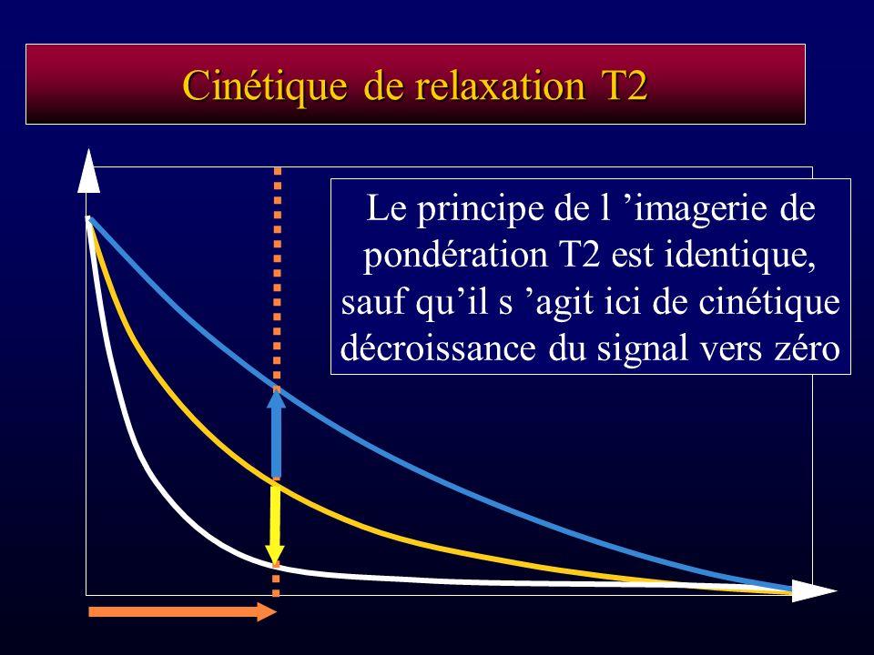 Cinétique de relaxation T2