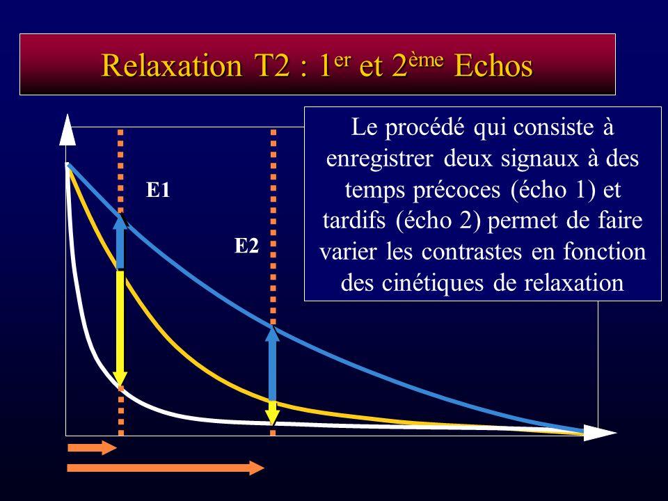 Relaxation T2 : 1er et 2ème Echos