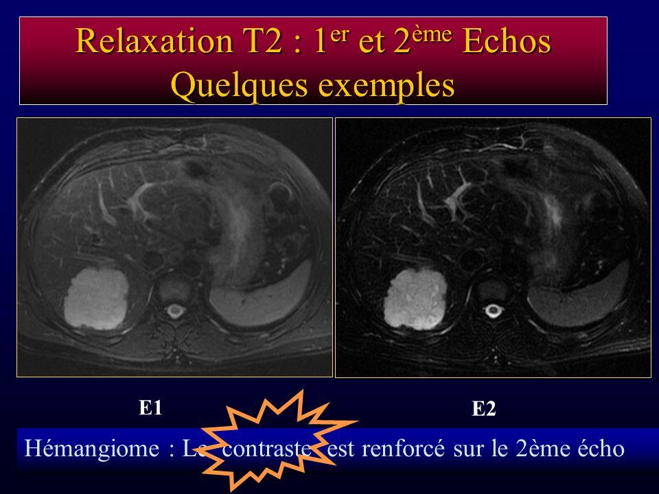 Relaxation T2 : 1er et 2ème Echos Quelques exemples