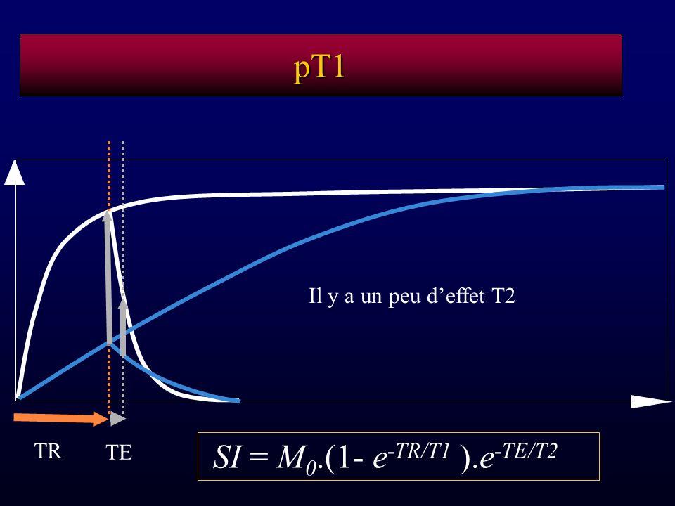 pT1 TE Il y a un peu d'effet T2 TR SI = M0.(1- e-TR/T1 ).e-TE/T2