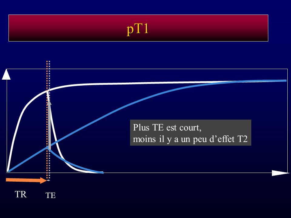 pT1 Plus TE est court, moins il y a un peu d'effet T2 TR TE