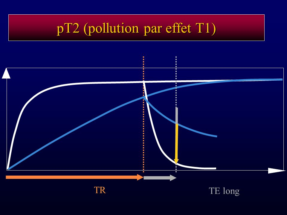 pT2 (pollution par effet T1)