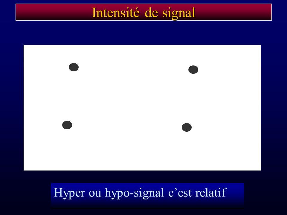 Intensité de signal Hyper ou hypo-signal c'est relatif