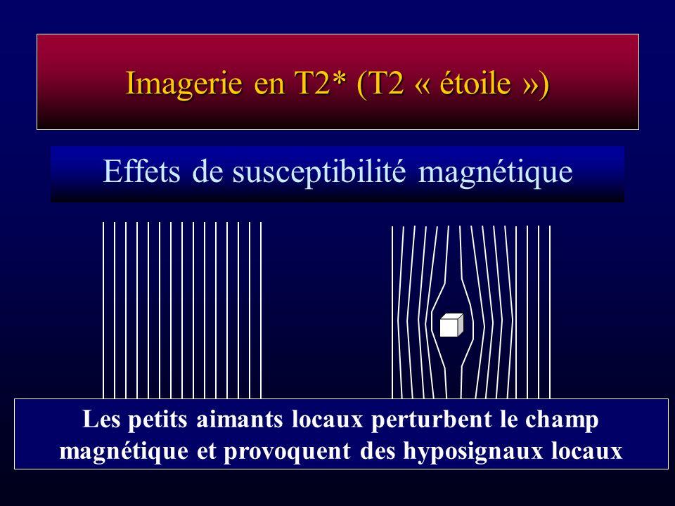 Imagerie en T2* (T2 « étoile »)