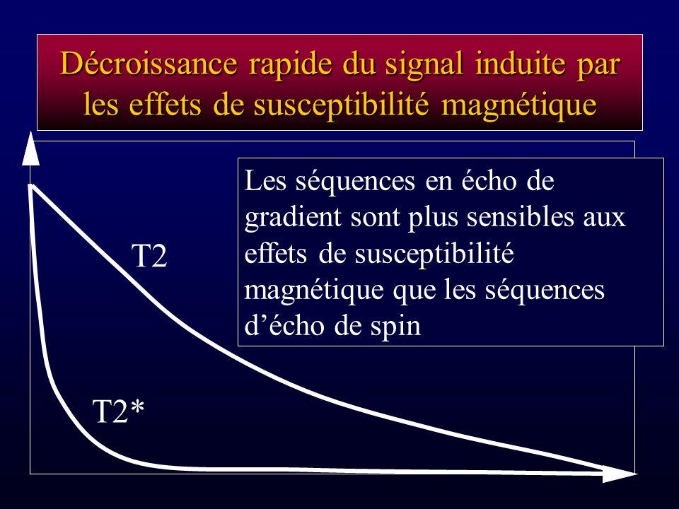 Décroissance rapide du signal induite par les effets de susceptibilité magnétique